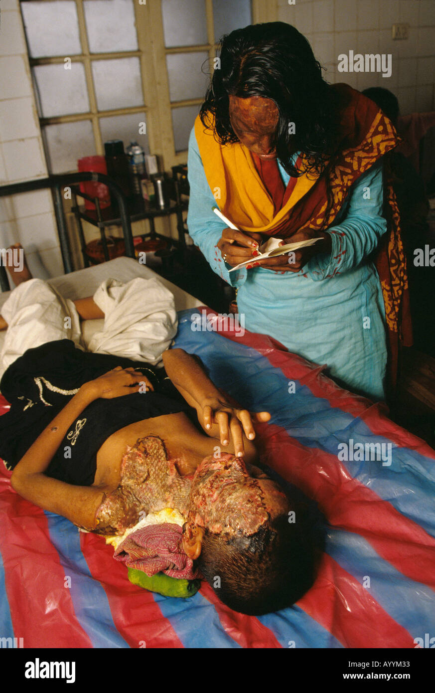 Acid attack survivor is treated in the burns unit of Dhaka Hospital, Bangladesh - Stock Image