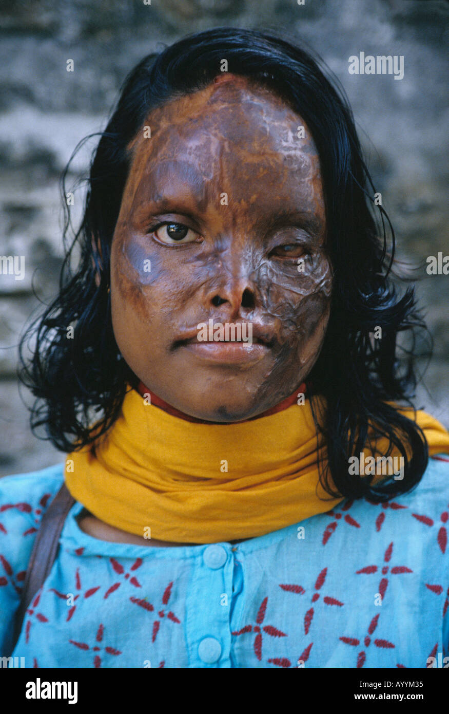 Bangladesh, acid attack survivor - Stock Image