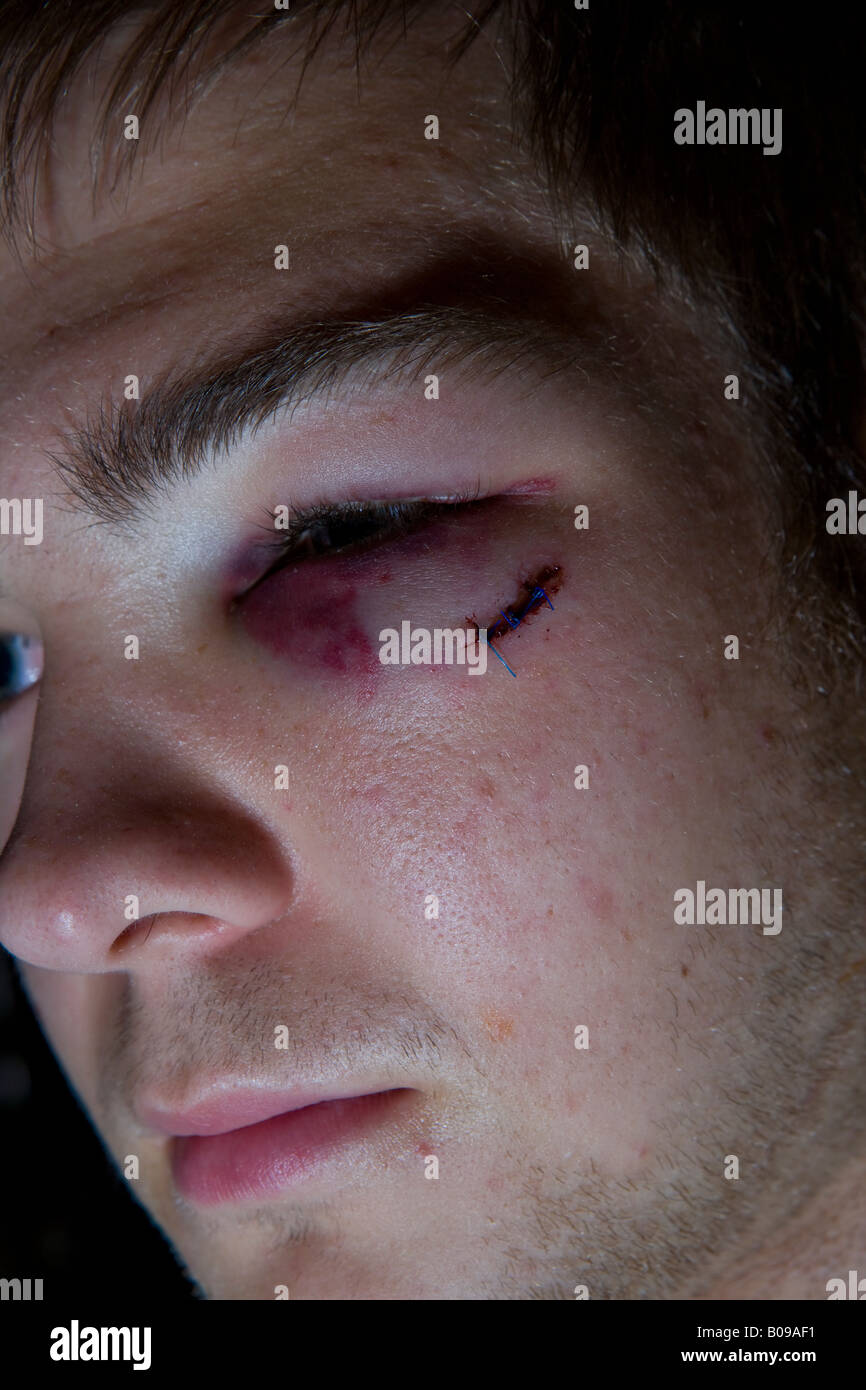 Young teenager with black and bruised stitched eye - Stock Image