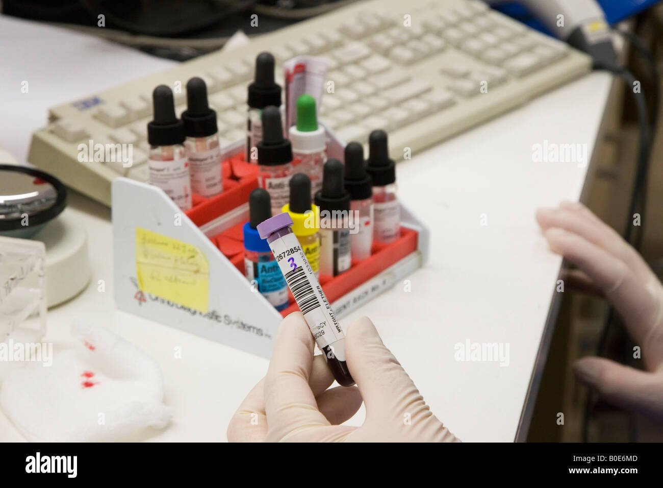 Detroit Michigan Technicians at the Detroit Medical Center perform blood tests ordered by doctors - Stock Image