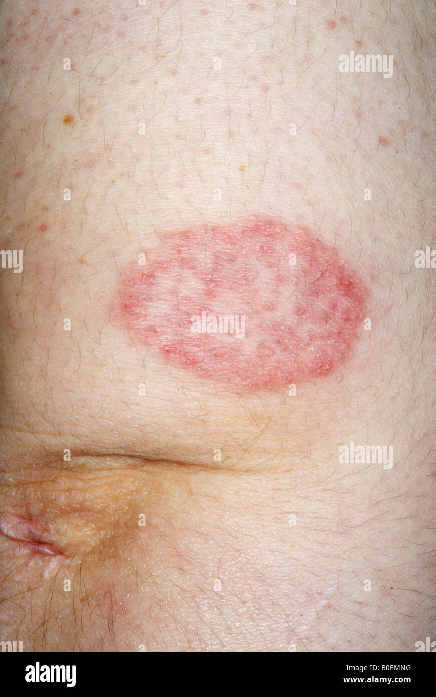 ringworm fungus infection of the skin - Stock Image