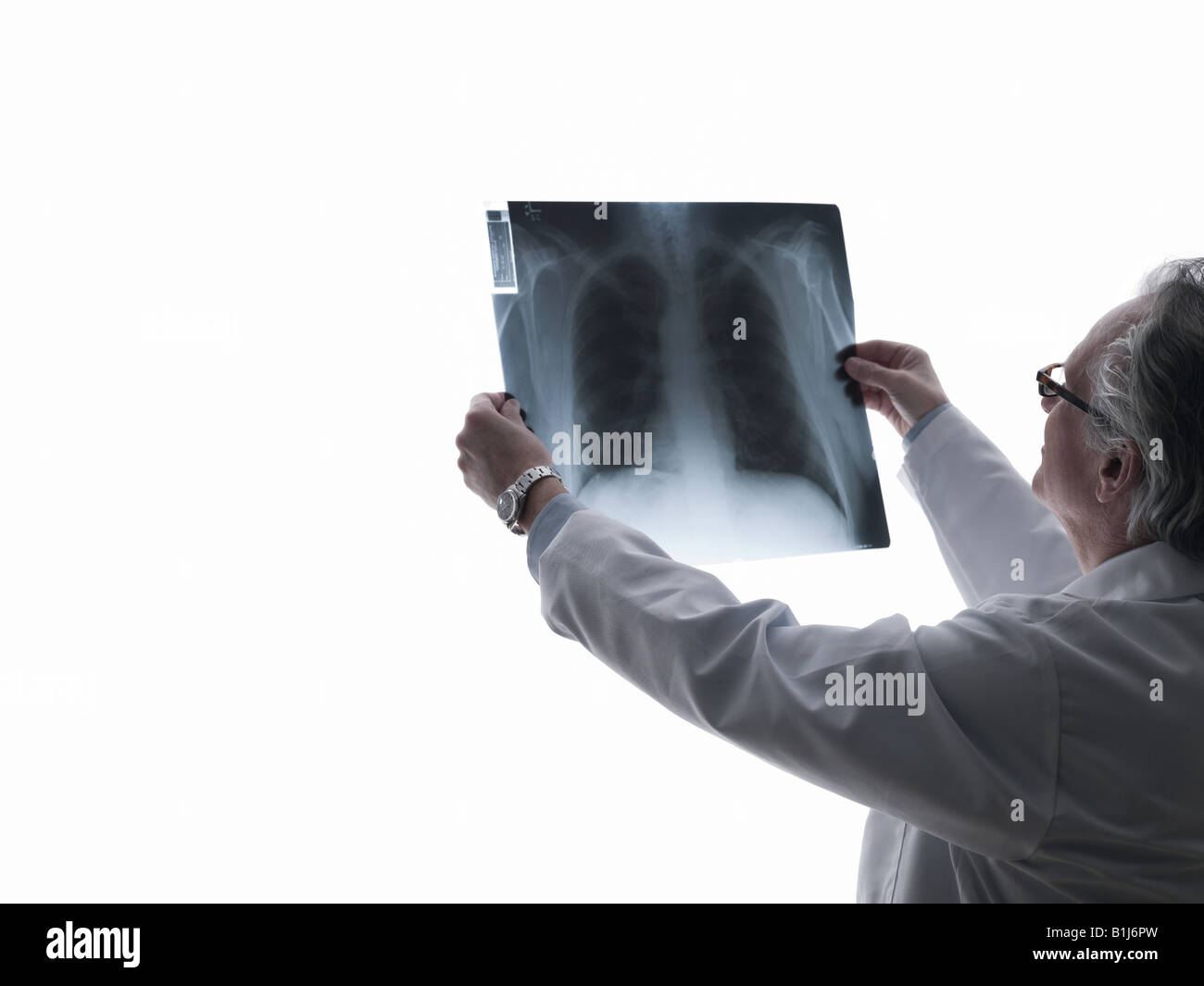 Doctor looking at an x-ray - Stock Image