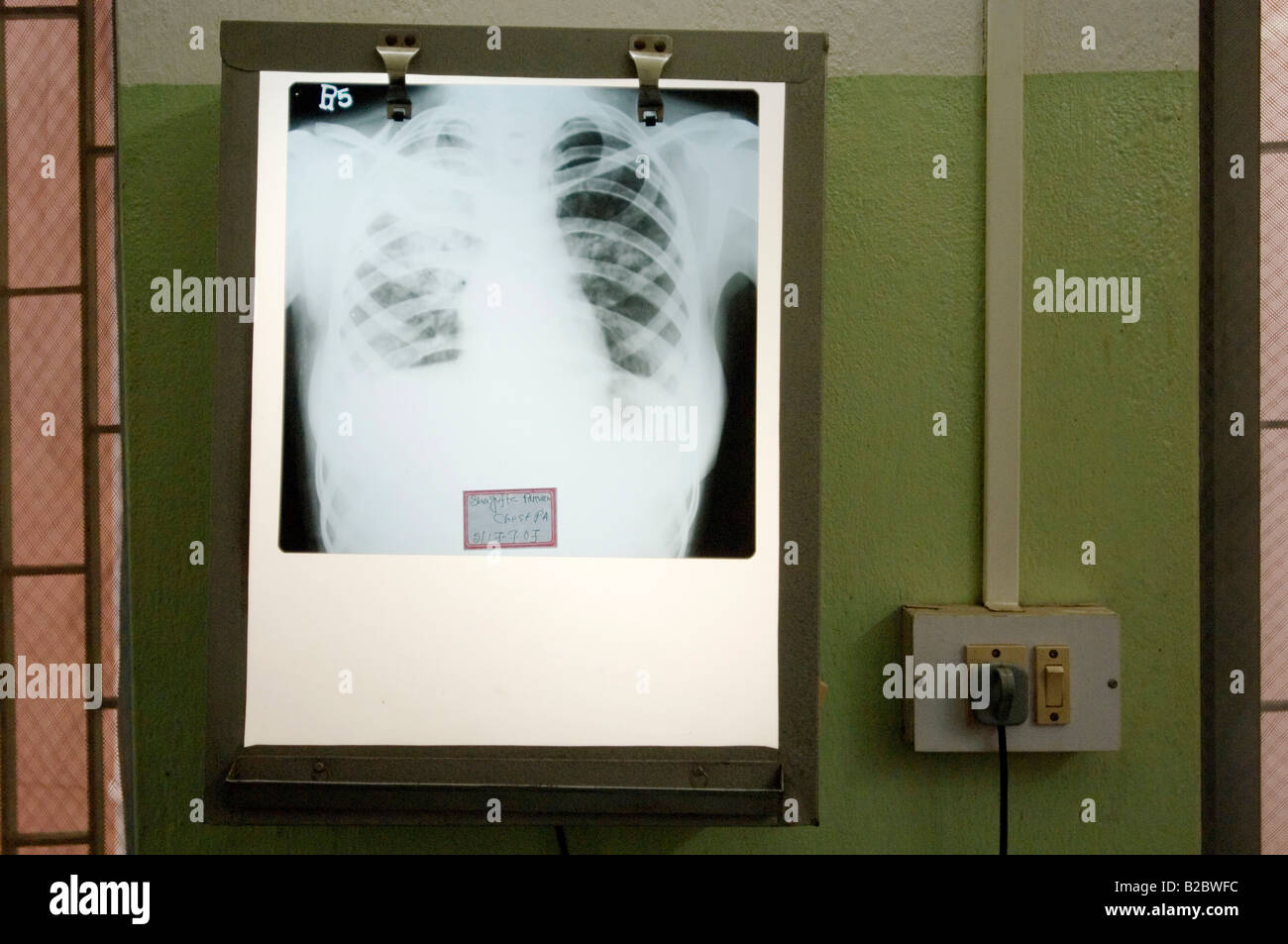 Lightbox with X-ray in the TB outpatients department of a special clinic for tuberculosis, white shadows in the - Stock Image