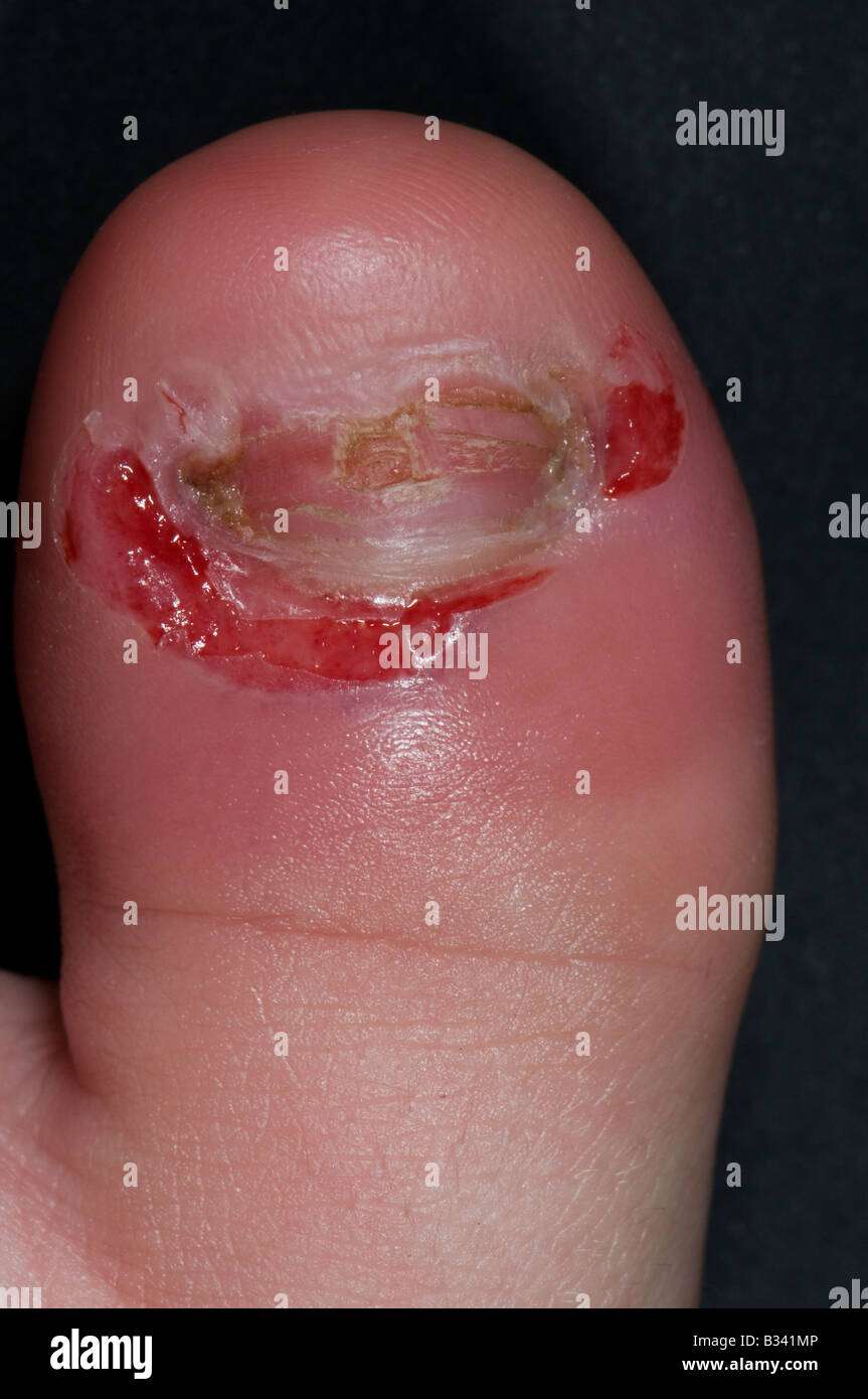 paronychia on the great toe of a 9 year old boy that has been drained - Stock Image