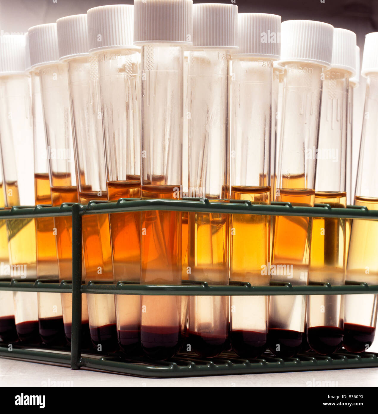 TEST TUBES OF HUMAN CELLS IN A LABORATORY AT A BIOMEDICAL RESEARCH FACILITY - Stock Image