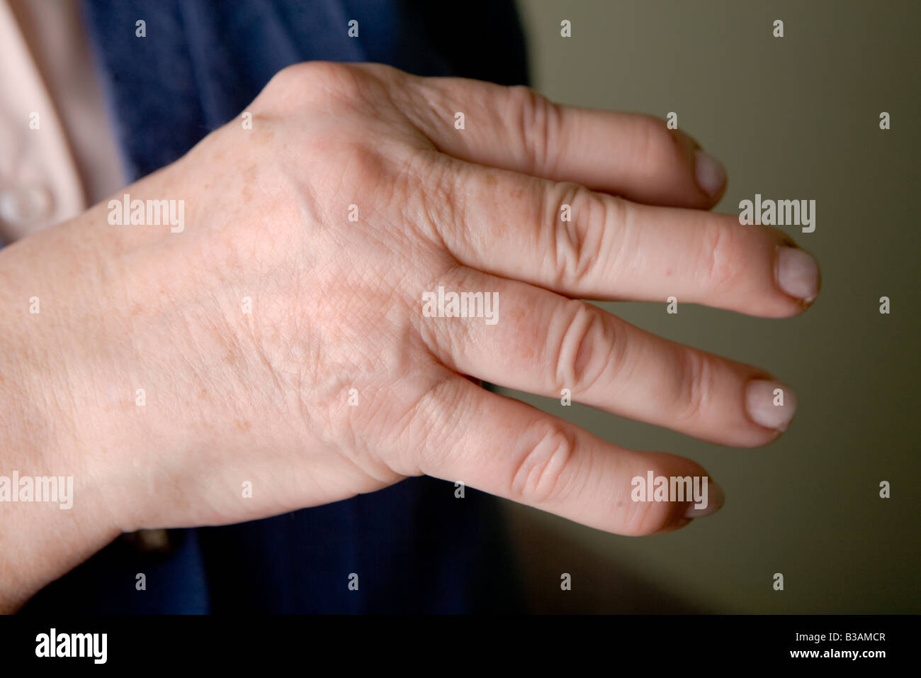 Psoriatic arthropathy hand of a woman of 60 years old - Stock Image