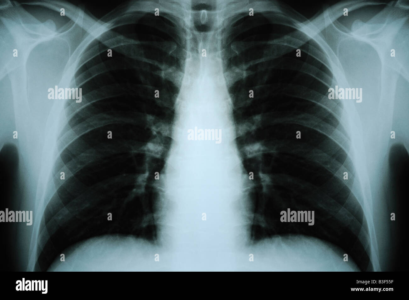 Chest X Ray of a an Adult Human Male Digitally Altered to be Symmetrical - Stock Image