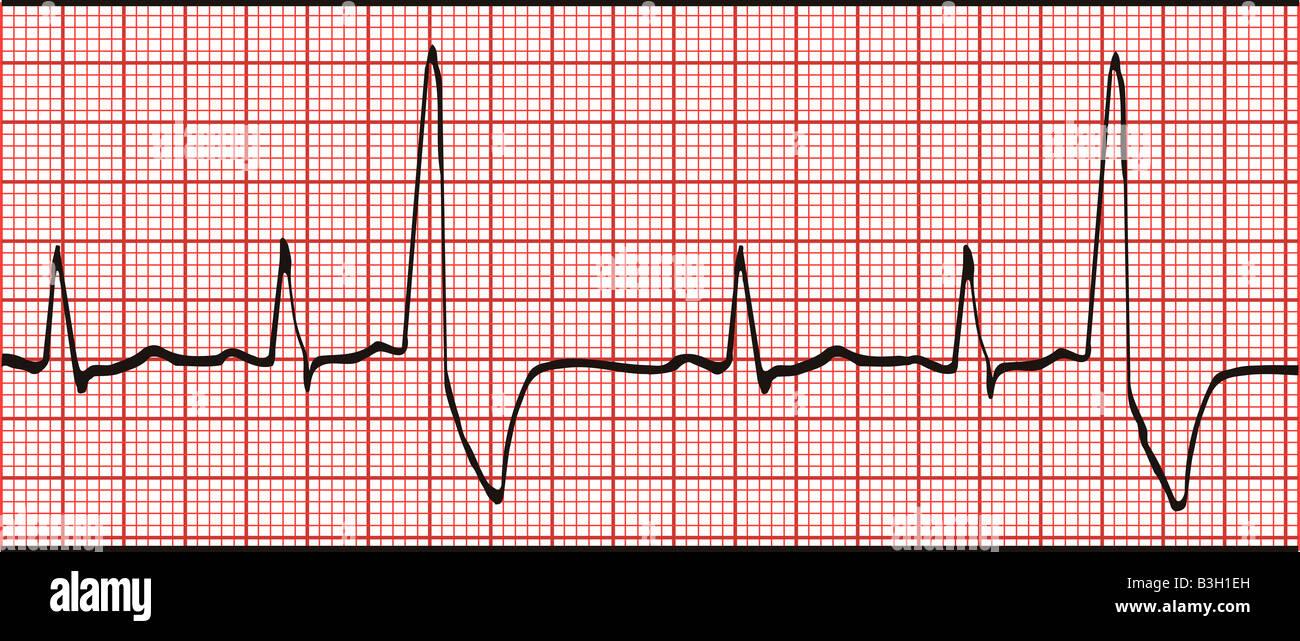 electrocardiogram ekg graph printout stock photo 19428713 alamy