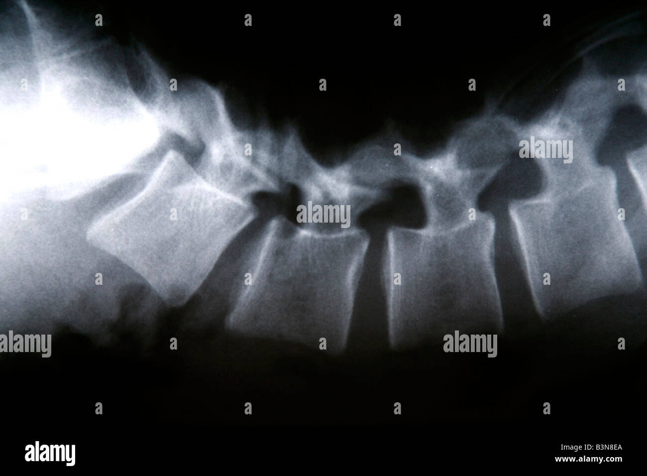 X-ray, close-up - Stock Image