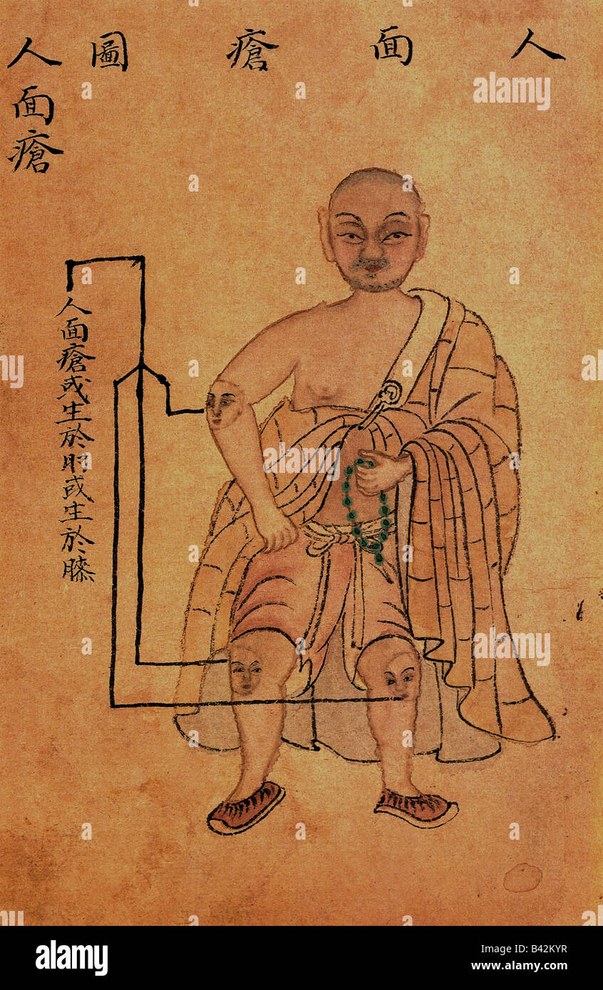 medicine, Huichun, Chinese medicine, symptoms, illustration of abscesses with human face, 1742, Additional-Rights - Stock Image