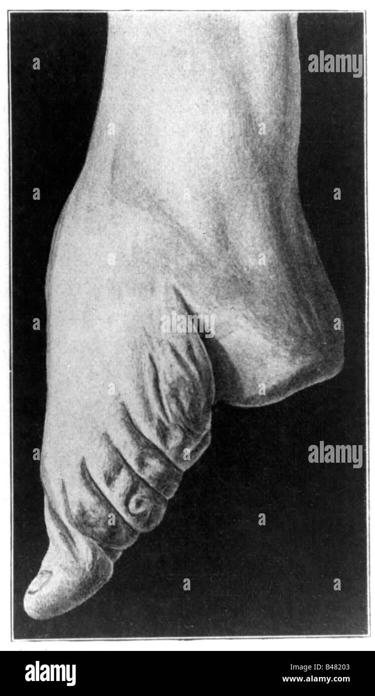 medicine, abnormalities, anomaly of feet, foot bondaging, foot of a Chinese woman, after photography, circa 1900, - Stock Image