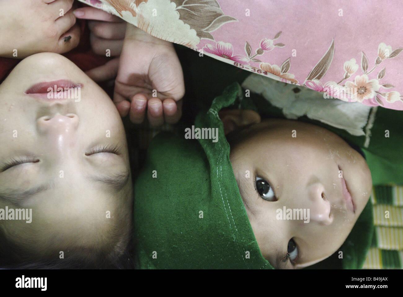 Centre for mentally disabled children, Van Thang, Vietnam Stock Photo