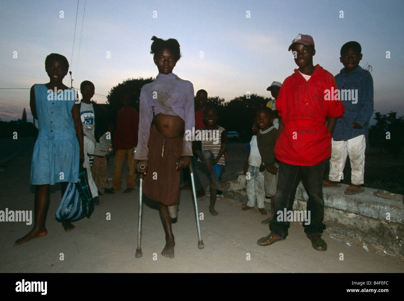 Victim of the civil war in Angola. - Stock Image