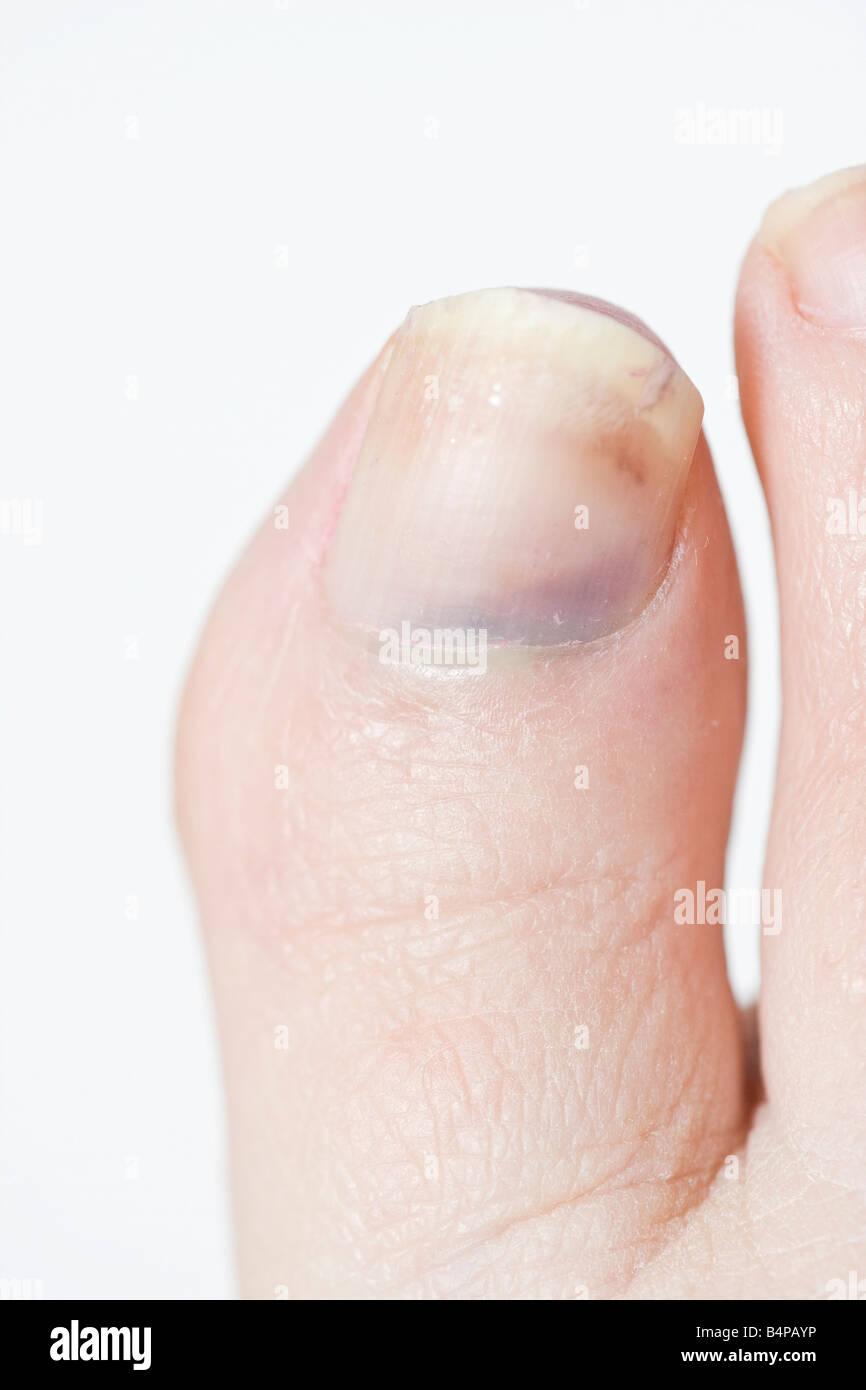 Bruised big toe - Stock Image