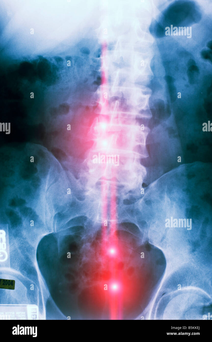 color coded x-ray of diseased human spinal column - Stock Image