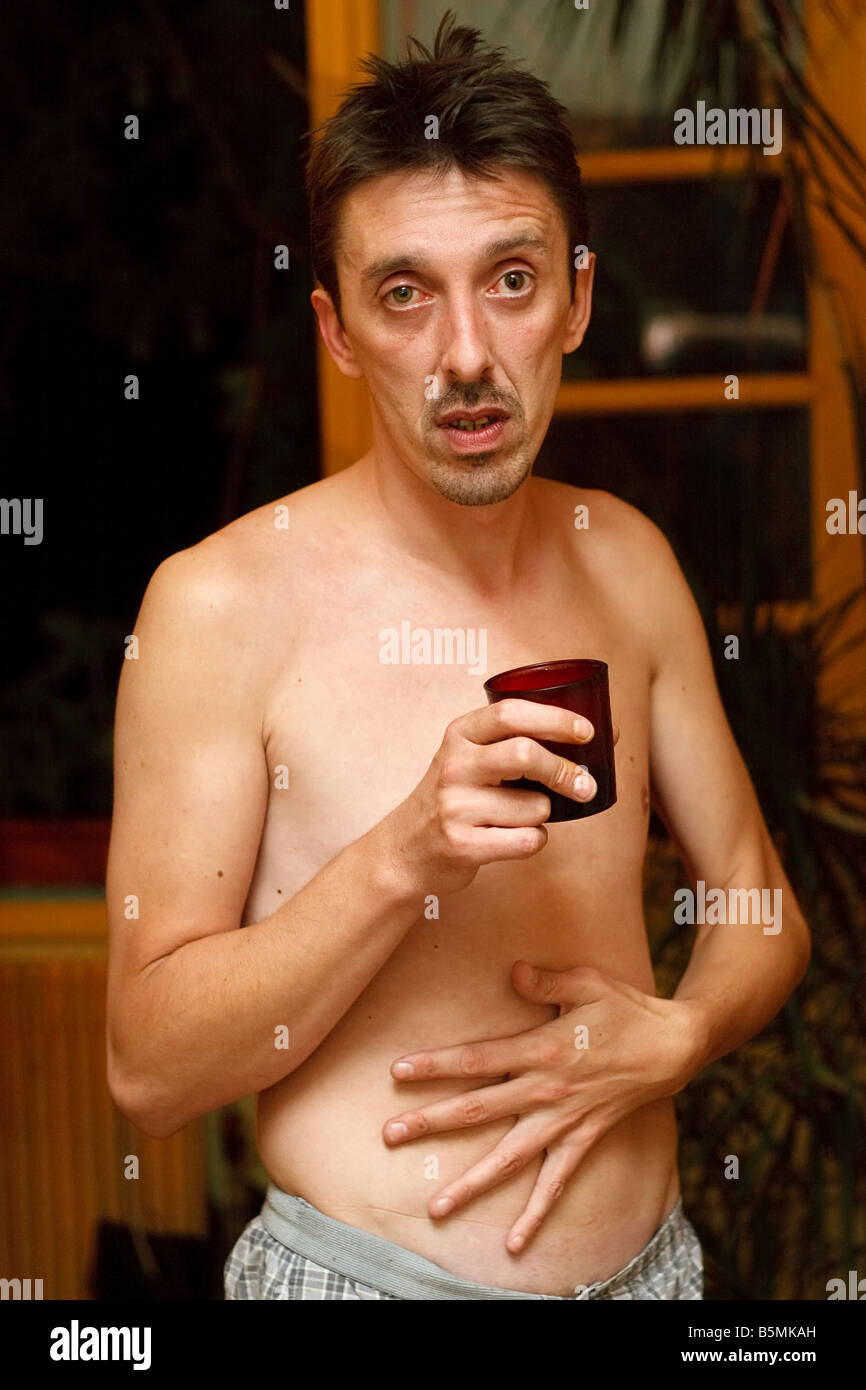 alcoholic man drinking and  having stomach ache - Stock Image