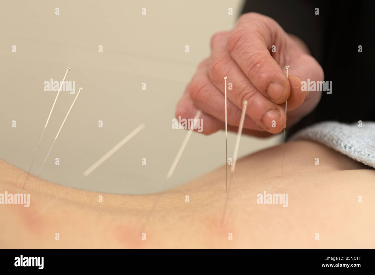 female acupuncturist applying acupuncture needles to the lower back of an adult woman late twenties to relieve back - Stock Image