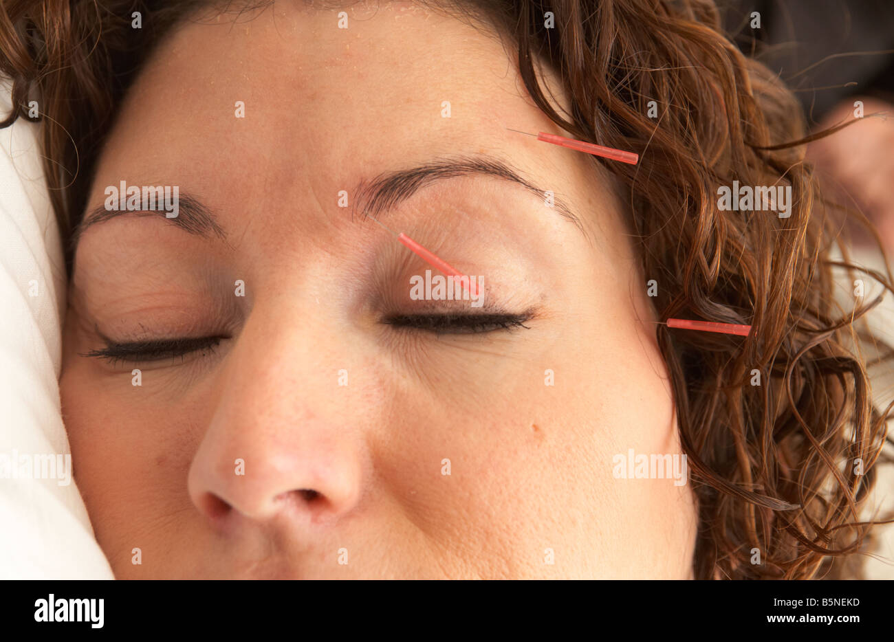 acupuncture needles on the face of an adult woman late twenties - Stock Image