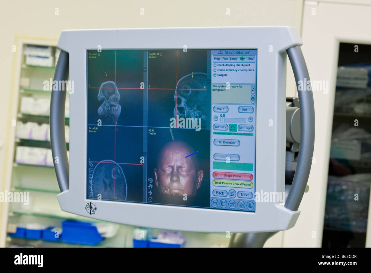 Patients information on computer screen, used during brain surgery to remove a benign tumor, Reykjavik Icelad Stock Photo