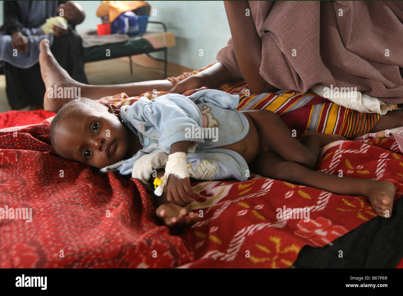 Undernourished somalian refugee boy in a hospital in refugee camp in Dadaab, at the border of Somalia and Kenya - Stock Image