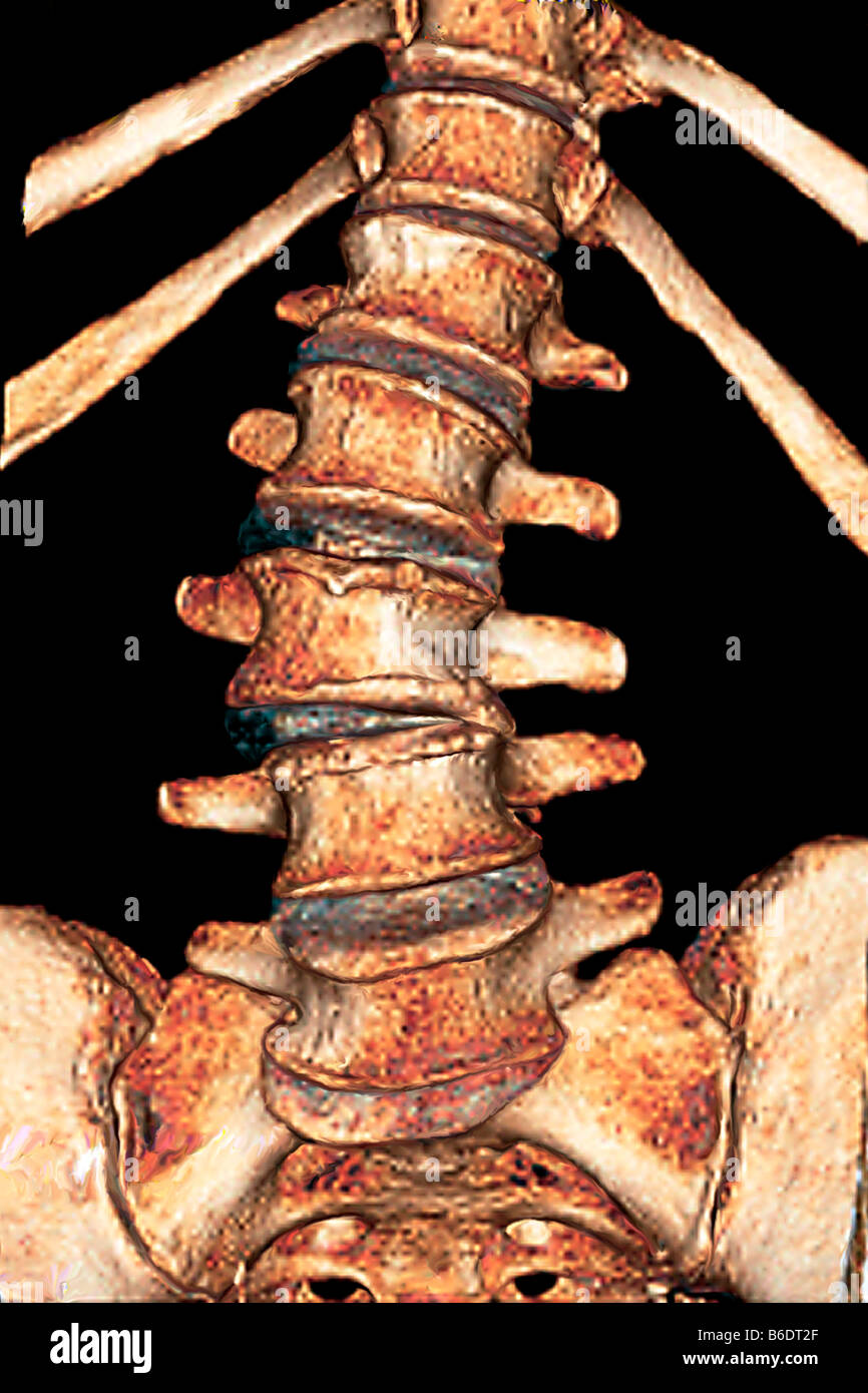 Arthritis of the spine. Frontal coloured 3D computed tomography (CT) scan of the spine of a 75year old with osteoarthritis. Stock Photo
