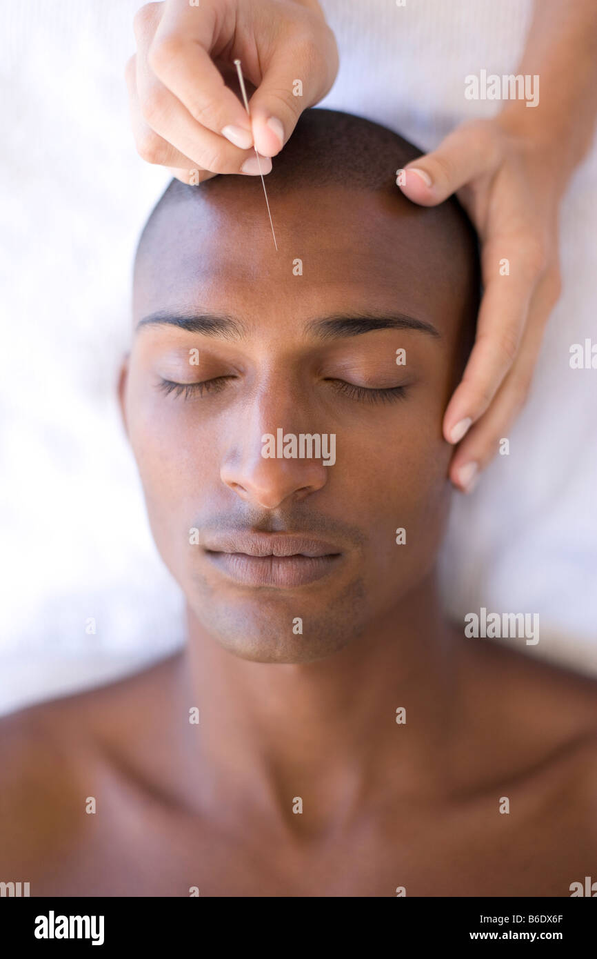 Acupuncturist inserting a needle into patient forehead - Stock Image
