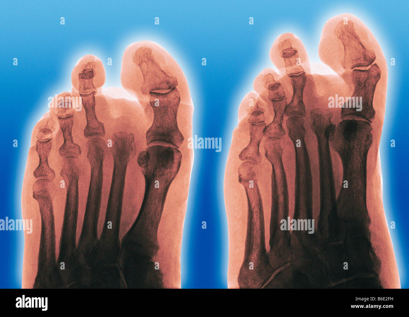 Amputated toe. Coloured frontal (left) and oblique(right) X-rays of a foot of a diabetic, showing an amputated second Stock Photo