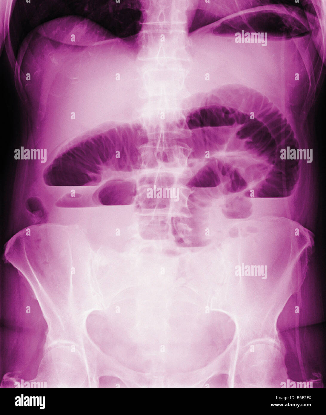 Occluded intestine. Coloured frontal X-ray of ablocked intestine (upper centre). - Stock Image