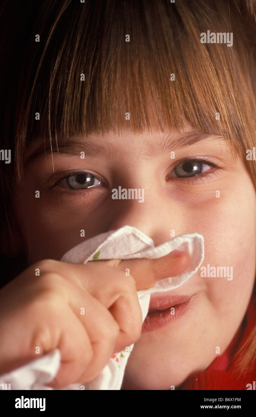 child with cold and soreness under her nose from rubbing and blowing - Stock Image