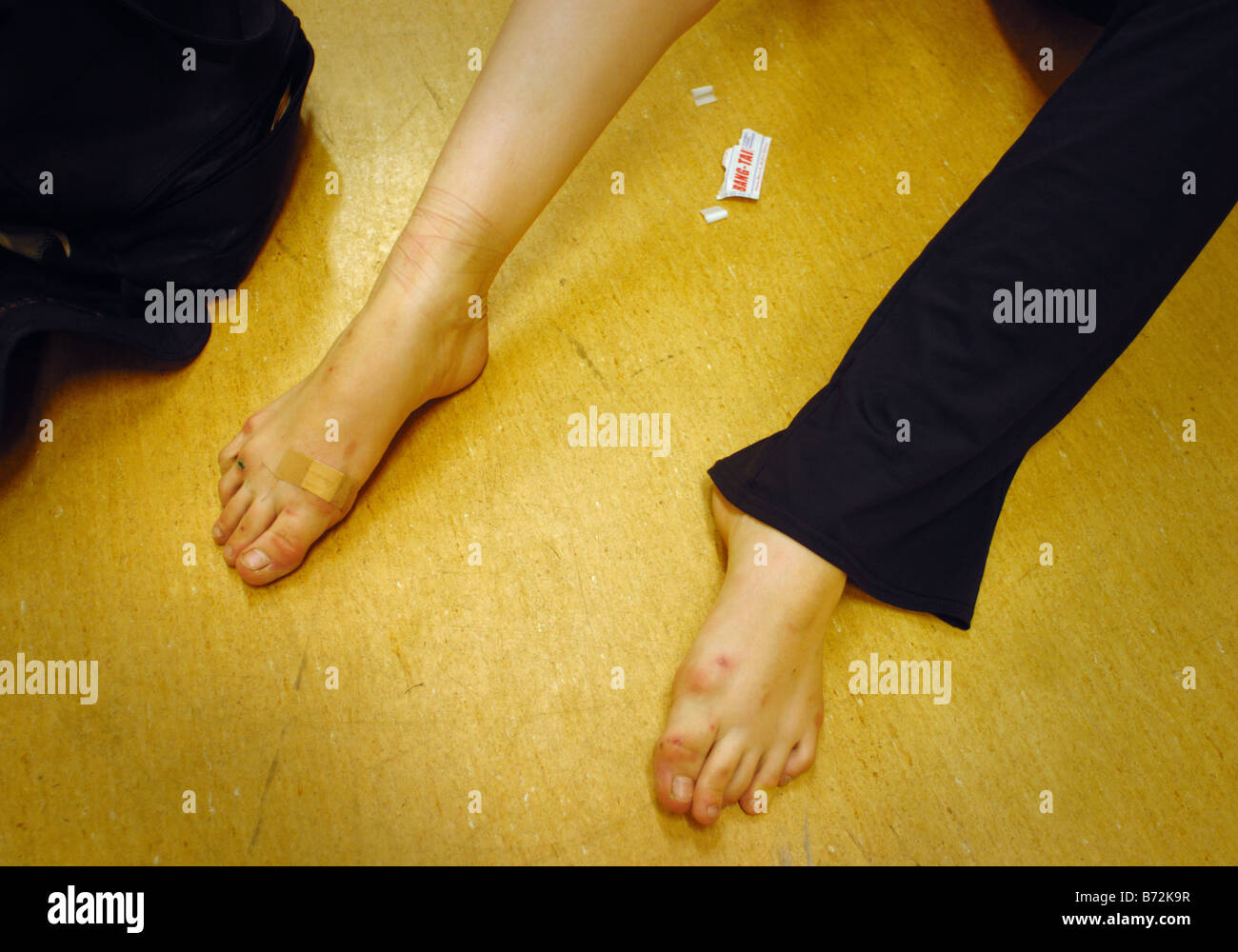 A ballet dancers sore feet behind scenes during rehearsals in Poland - Stock Image