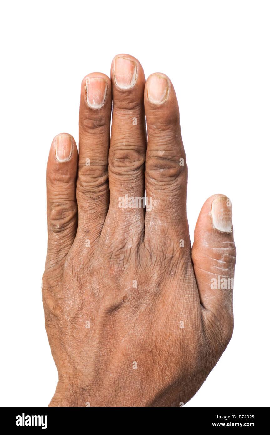 Dirty Fingernails Stock Photos & Dirty Fingernails Stock Images - Alamy