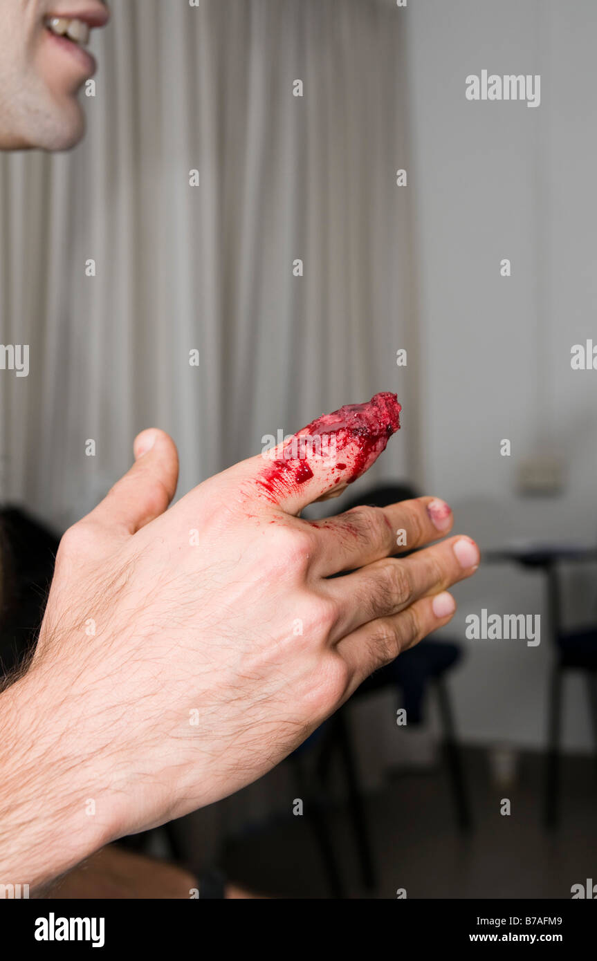 a severed finger mock up injury with make up Model release available - Stock Image
