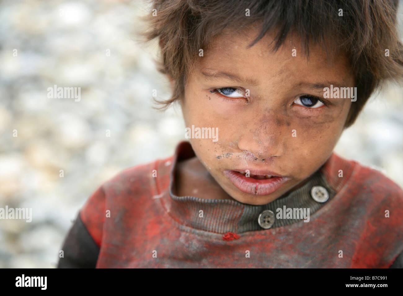 Neglected five year old Nepalise boy Sunil - Stock Image