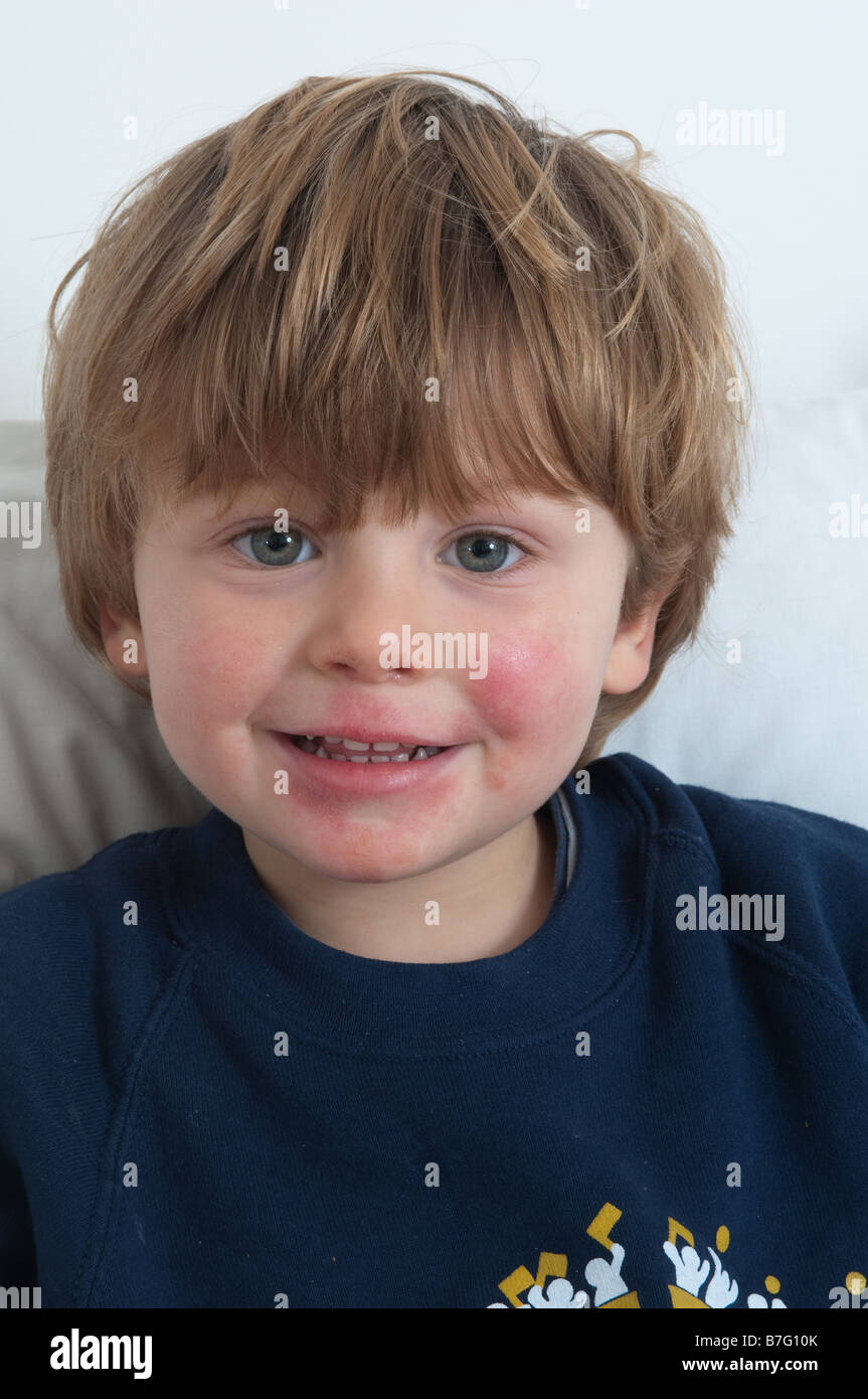 Ill boy just under three years old with a sore face due to a prolonged cold and cough and runny nose. - Stock Image