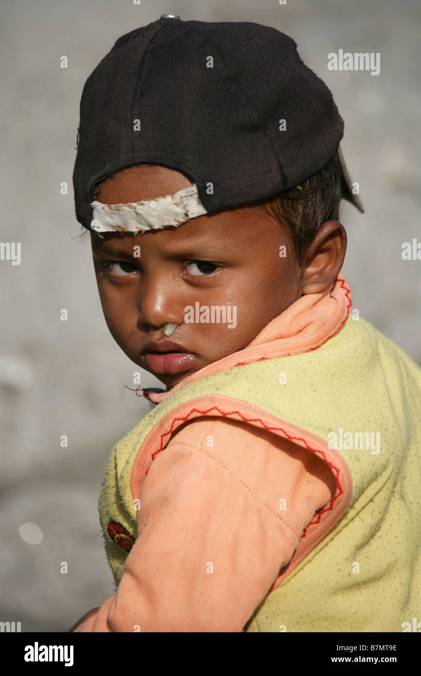 Boy with runny nose and base ball cap - Stock Image