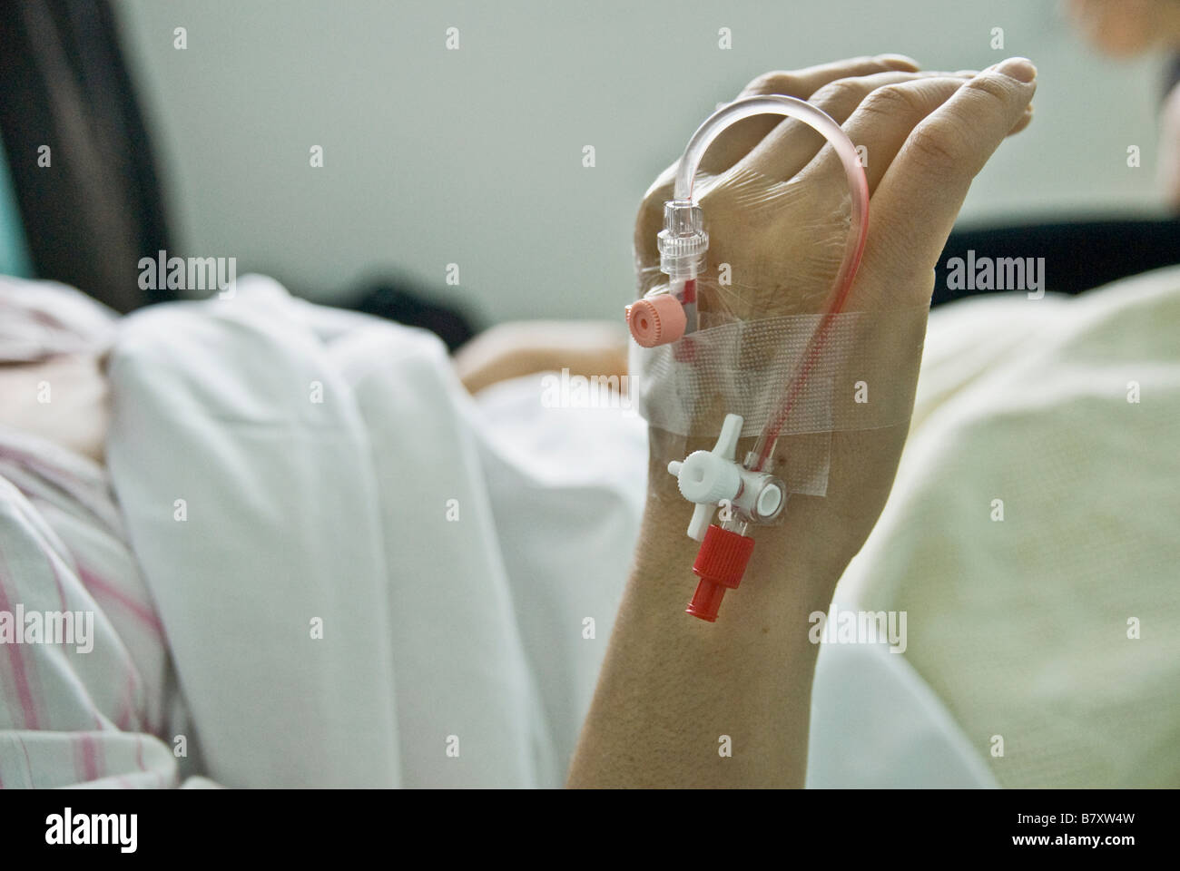 A PATIENT HAND NEEDLE ON IT,READY TO BE TAKING BLOOD - Stock Image