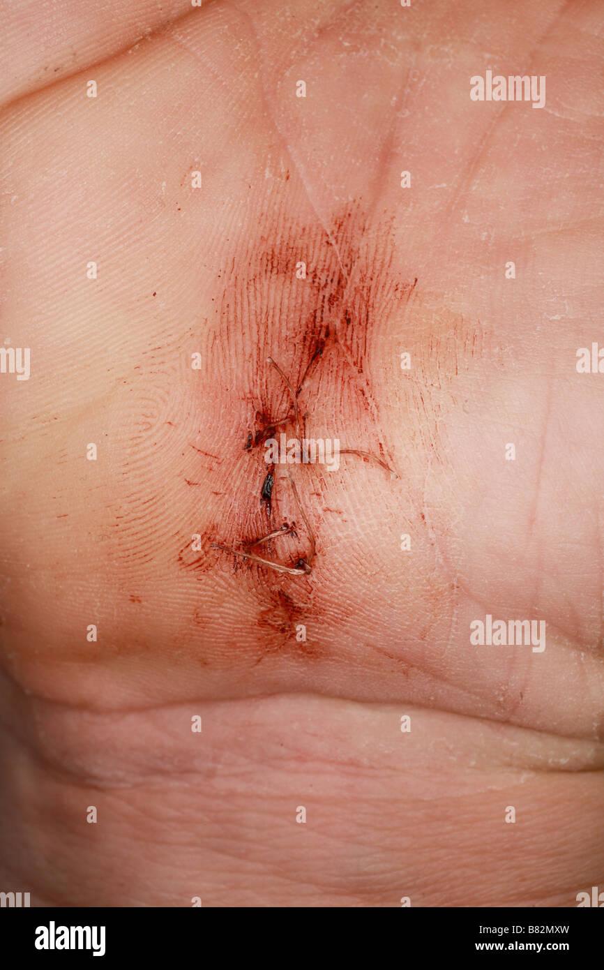Medical procedure scar - Stock Image