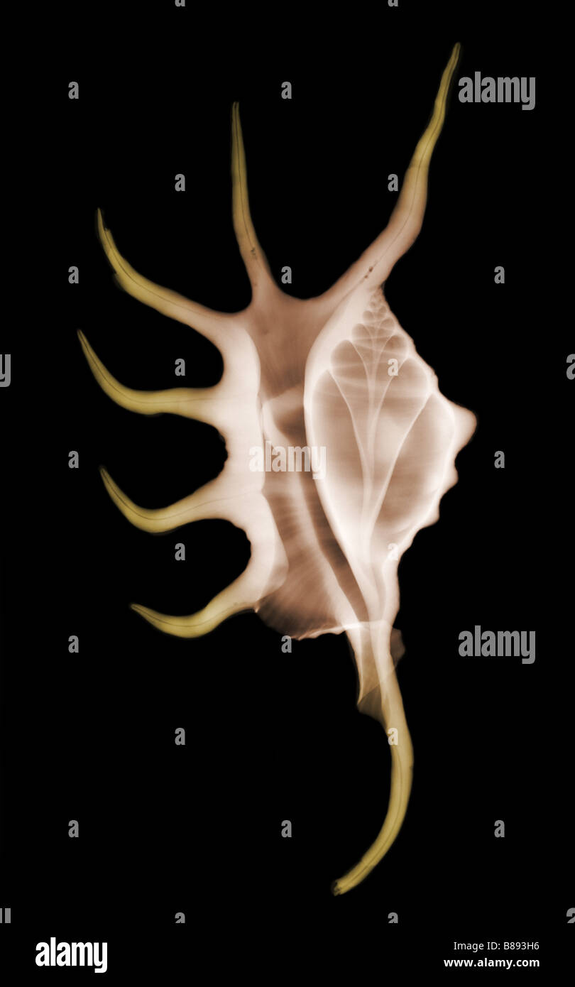 X ray of a Spider Conch Lambis sp shell - Stock Image