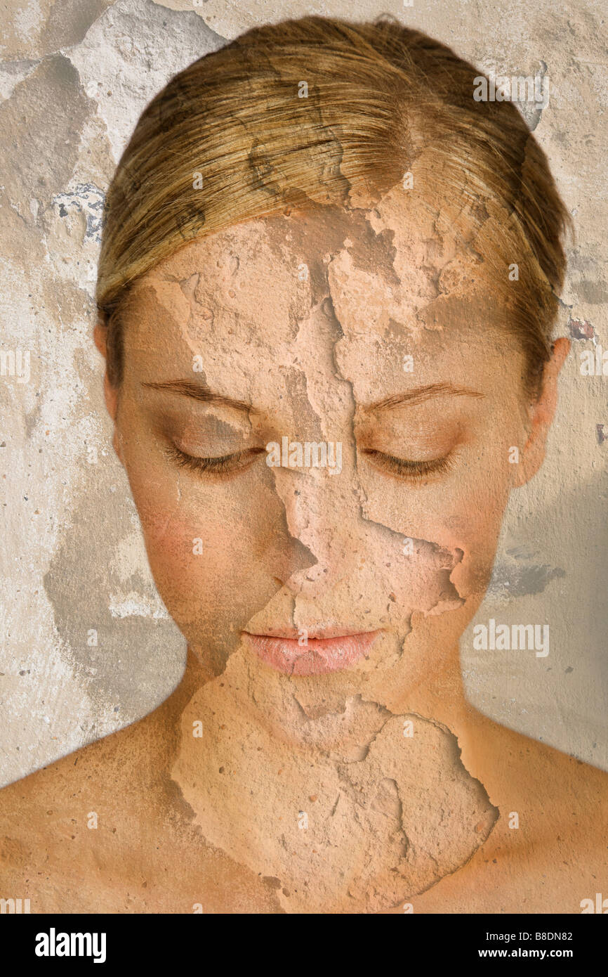 Woman with cracked and peeling skin - Stock Image