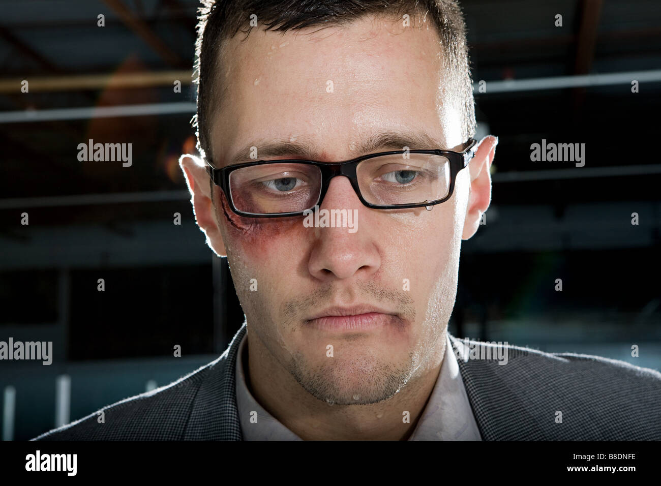Businessman with a bruised eye - Stock Image