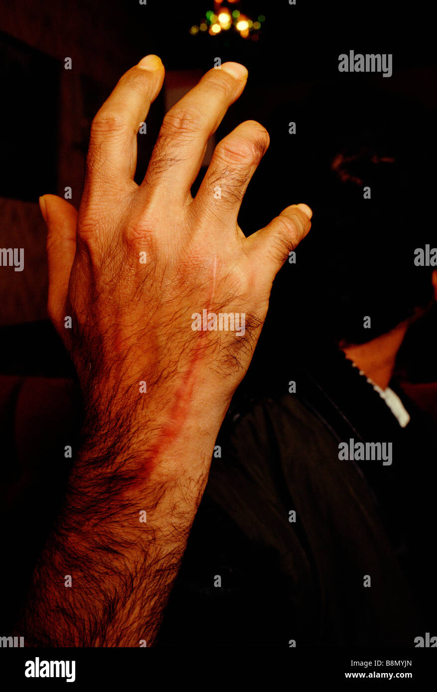 Brick Lane, London, England: An Asian victim of a racist attack displays the scar left on his hand. - Stock Image
