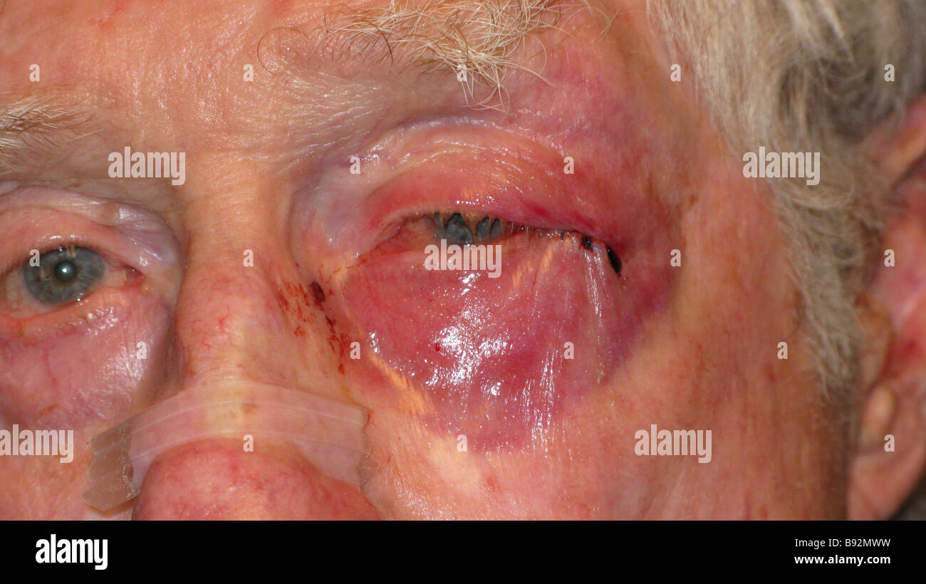 eye injury on old man after violent attack - Stock Image