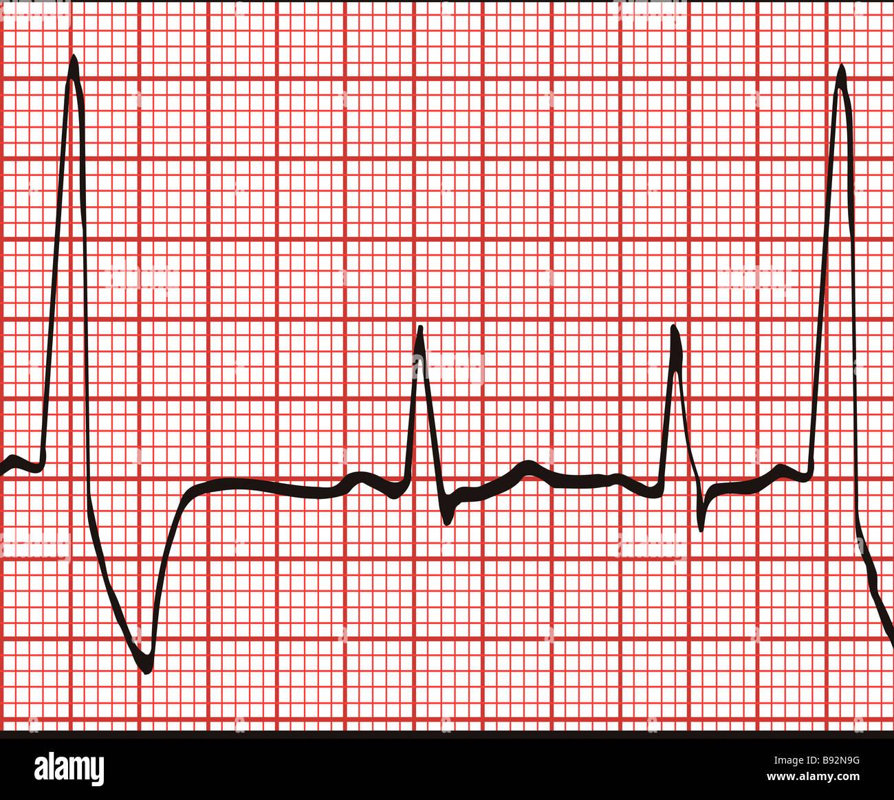 electrocardiogram ekg graph printout stock photo 22802908 alamy