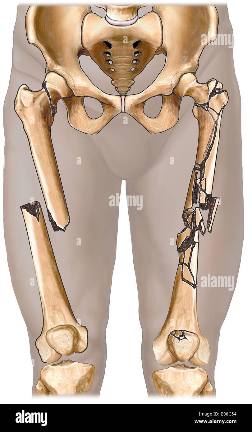 Fractured Femur - Stock Image