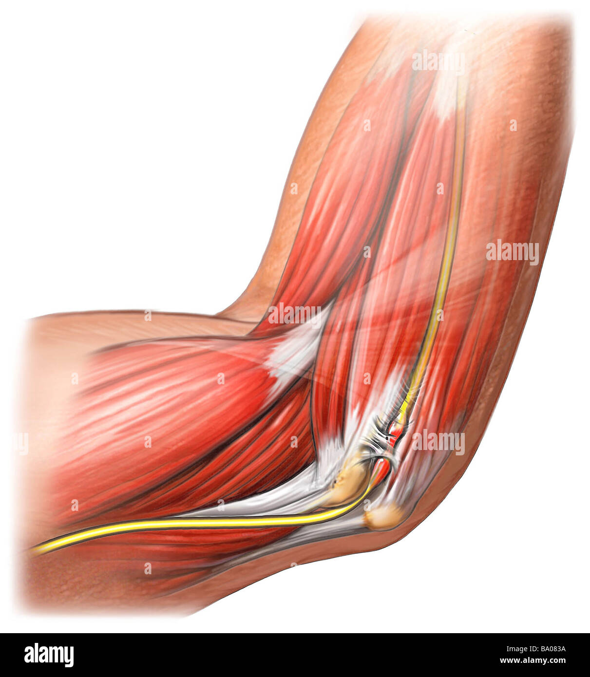 This stock medical illustration shows the right ulnar nerve entraped ...
