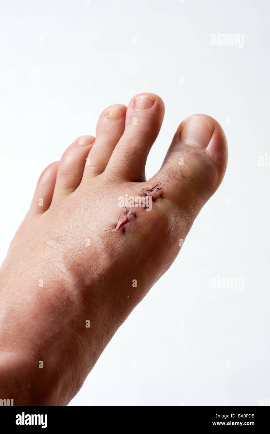 Left Foot - Stock Image