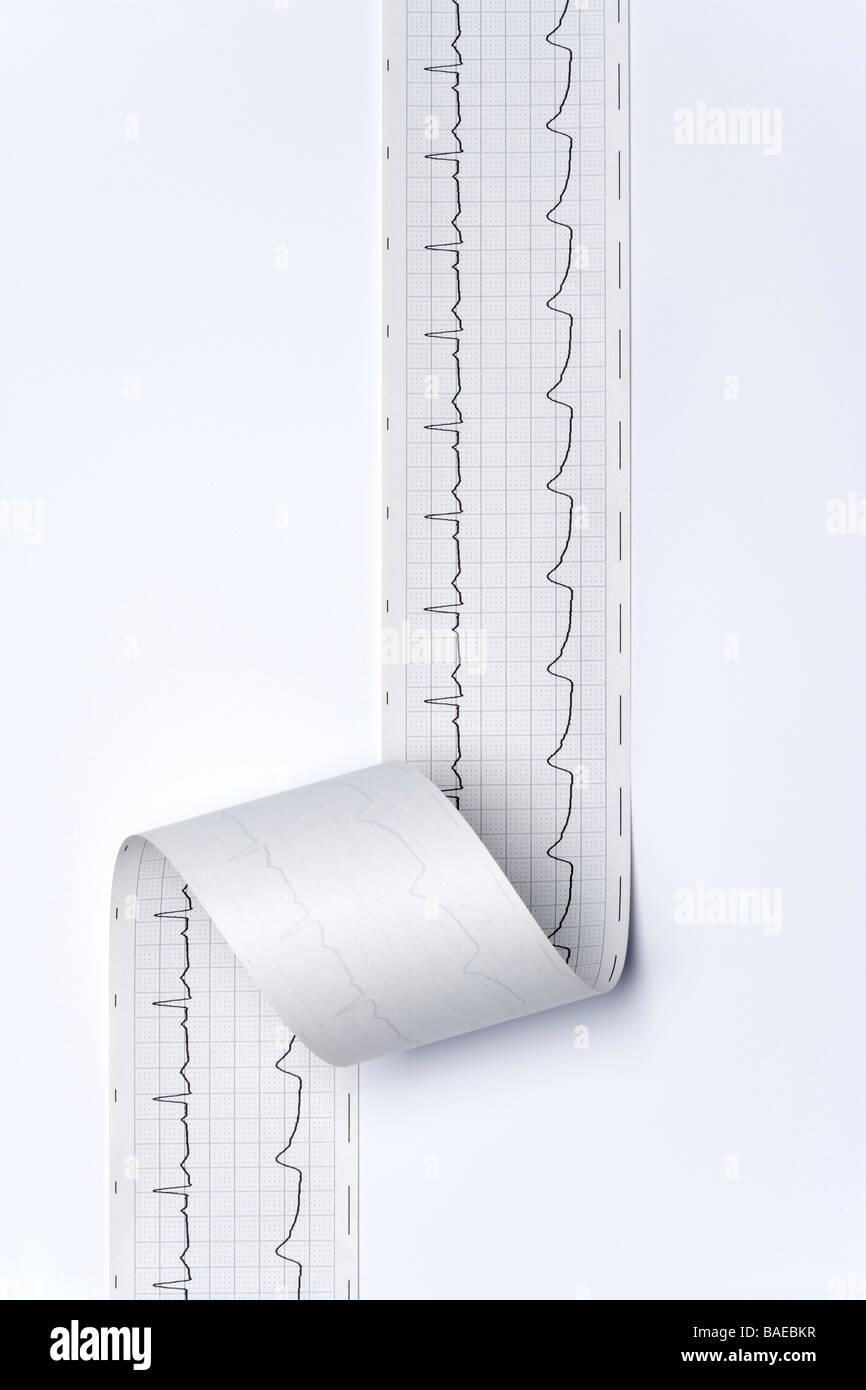 Regular electro cardiogram - Stock Image