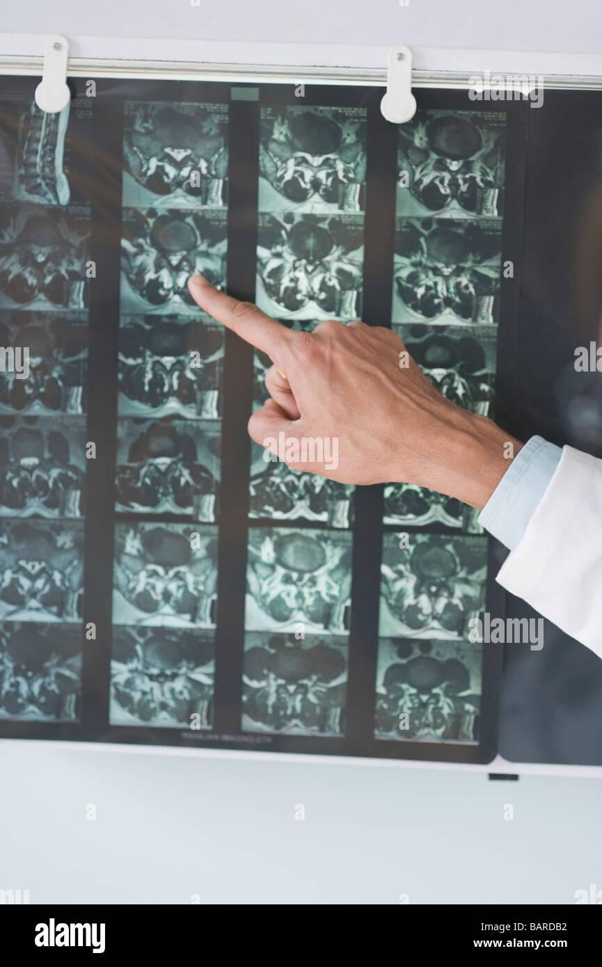 Doctor examining an x-ray report, Gurgaon, Haryana, India - Stock Image