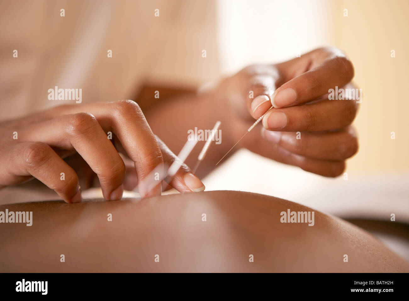 Acupuncture. Acupuncturist inserting a needle into a client's back. - Stock Image