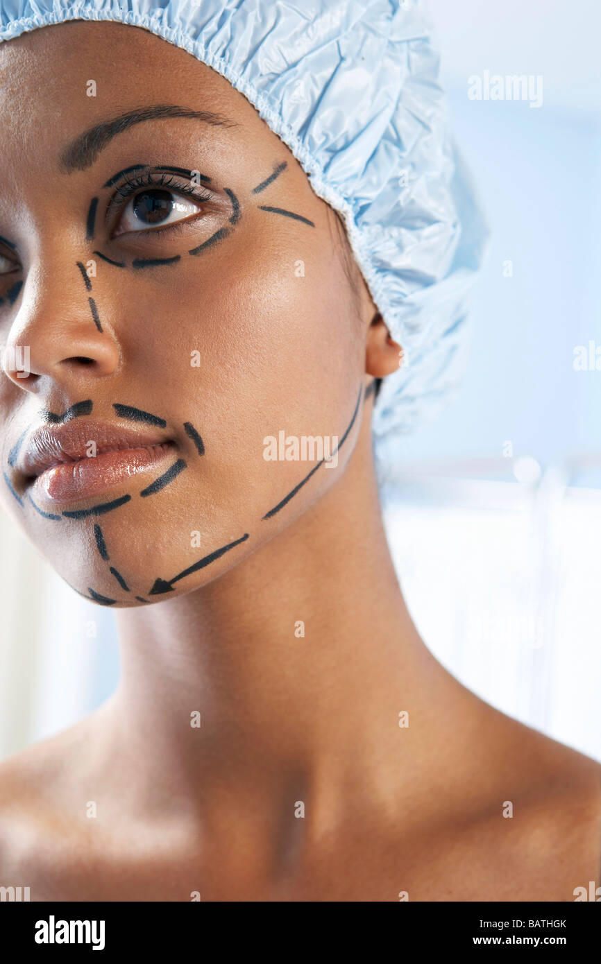 Face lift. Guide lines for surgical incisions on a patient face. - Stock Image
